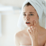 <b>Acne Treatment and Care</b>